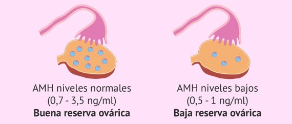 AMH-baja-reserva-ovarica