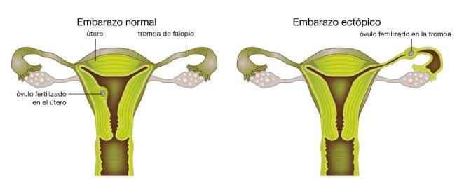 Diferencias embarazo normal a uno ectópico